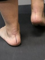 Orthotic Therapy 1