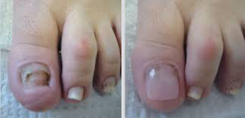 Restoring to Healthy Nails