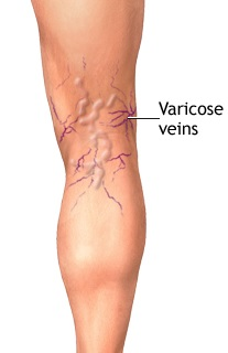 VASCULAR CHANGES ASSOCIATED WITH AGEING 6