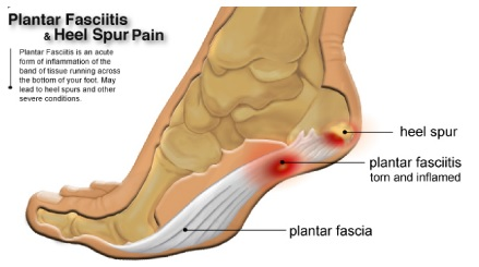 What is the Plantar Fasciitis