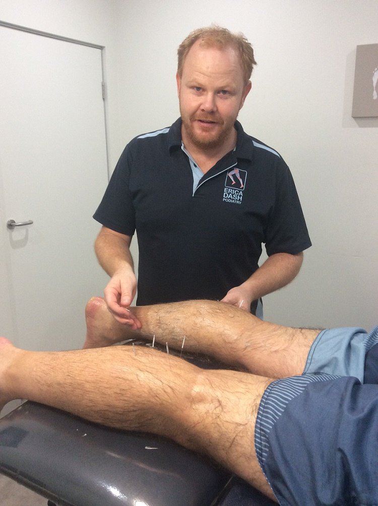 Patient receiving Dry Needling Treatment